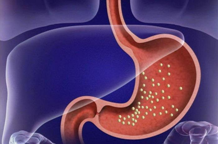 Хронический гастрит с пониженной кислотностью