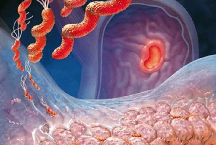 Лечение антрального гастрита
