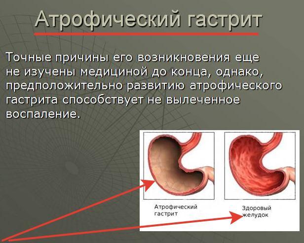 причины возникновения атрофического гастрита у женщин и мужчин