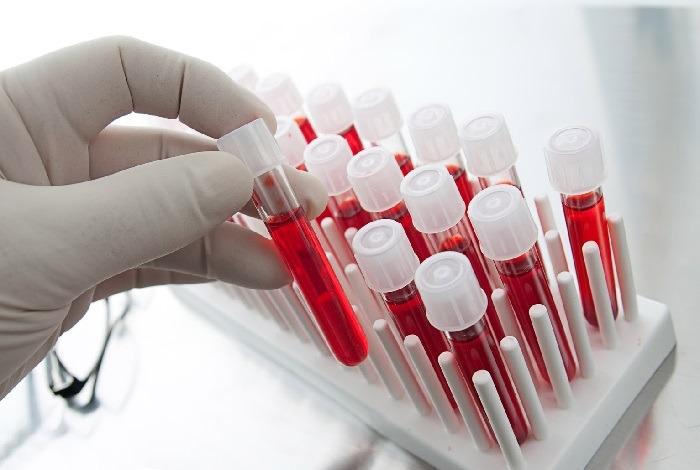 Анализ крови при гастрите